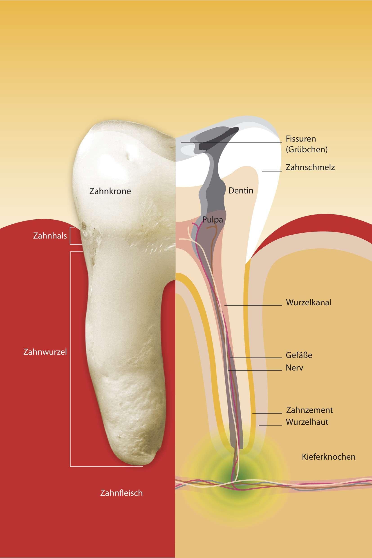 Ursache: irreversible Entzündung oder Zerstörung des Zahnmarkes